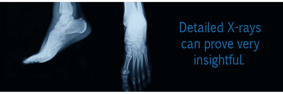 Foot X-Ray Scan